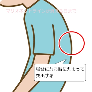胸椎(赤丸部分)を押し戻す