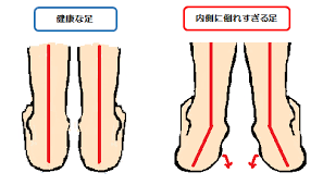 X脚・O脚など足首のねじれは危険!健康な立ち方は真っ直ぐ!