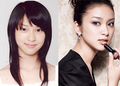 生まれ変わったら韓国人になりたい武井咲は、韓国人(キムテヒ)と同じように目を二重瞼にし、目頭を斬り裂く美容整形手術をしている。