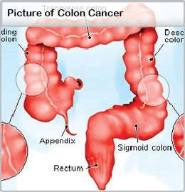 colon-cancer-illustration.jpg