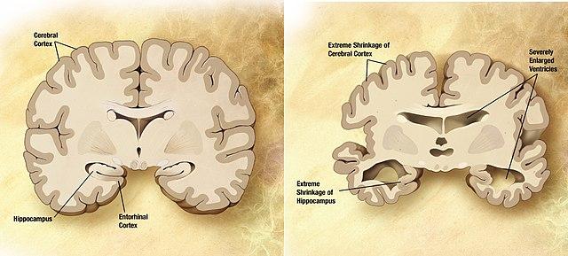 640px-Alzheimers_disease_brain_comparison.jpg