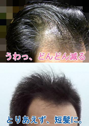 抜け毛が多い