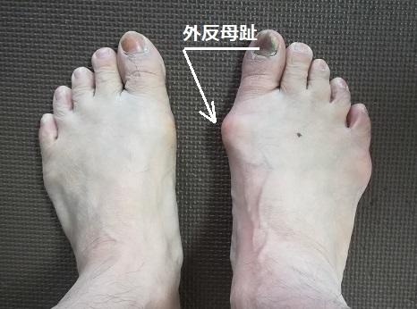 1 外反母趾