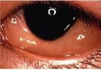 アレルギー性結膜炎1
