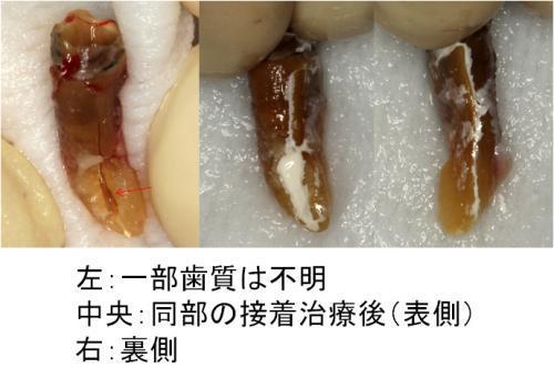 症例2 接着再植術中