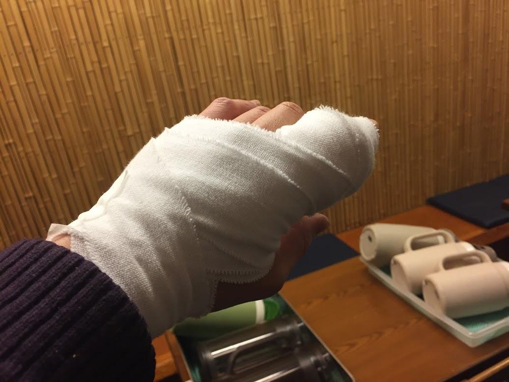 指を縫った