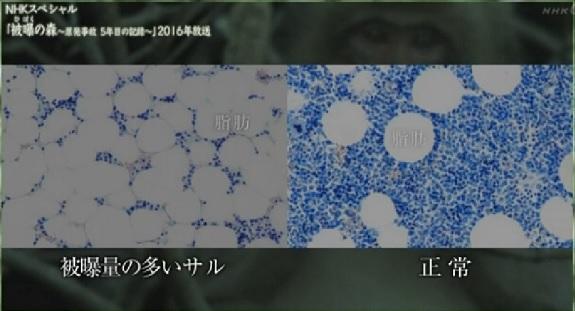 骨髄幹細胞